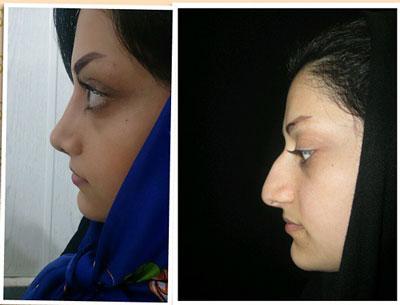نمونه کار جراحی بینی دکتر خلیلی2