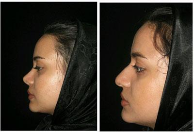 نمونه کار جراحی بینی دکتر خلیلی3