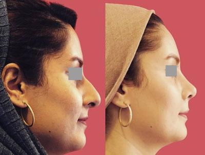 نمونه کار جراحی بینی دکتر محرابی1