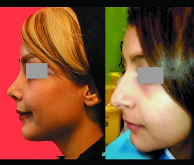 نمونه کار جراحی بینی دکتر محرابی2