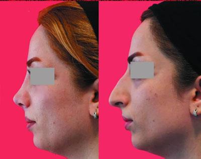 نمونه کار جراحی بینی دکتر محرابی3