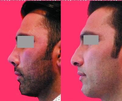 نمونه کار جراحی بینی دکتر محرابی4