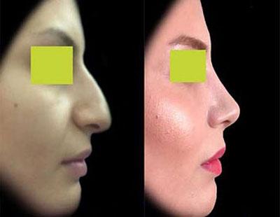 نمونه کار چراحی بینی دکتر افراه1