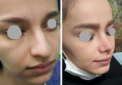 نمونه کار چراحی بینی دکتر افراه3