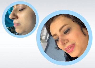 نمونه کار جراحی بینی دکتر رضایی1
