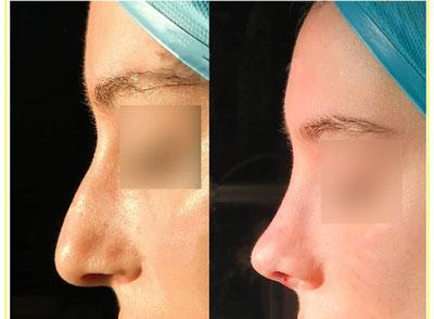 نمونه کار جراحی بینی دکتر حسامی2