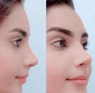 نمونه جراحی بینی دکتر طرزی1