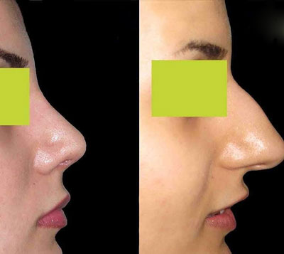 نمونه جراحی بینی دکتر طرزی2