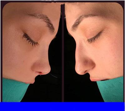 نمونه کار جراحی بینی دکتر توکلی3
