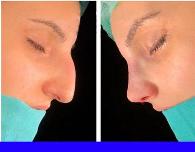 نمونه کار جراحی بینی دکتر توکلی1