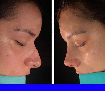 نمونه کار جراحی بینی دکتر توکلی2