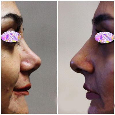 نمونه جراحی بینی دکتر حسین زاده1