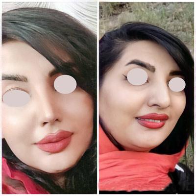 نمونه جراحی بینی دکتر اکبریان1