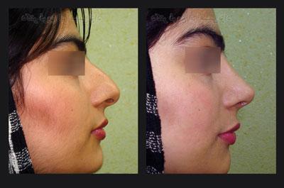 نمونه کار جراحی بینی دکتر ابراهیمی نژاد1