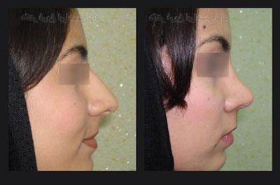 نمونه کار جراحی بینی دکتر ابراهیمی نژاد2