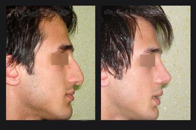 نمونه کار جراحی بینی دکتر ابراهیمی نژاد4