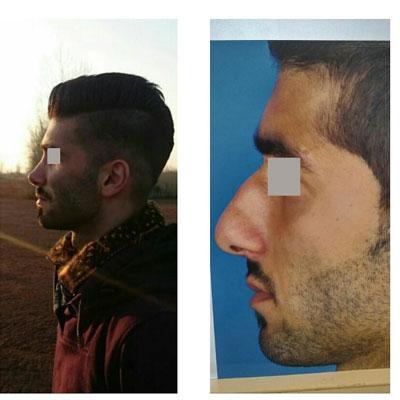 نمونه کار جراحی بینی دکتر کوشا4