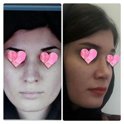 نمونه کار جراحی بینی دکتر کوشا1