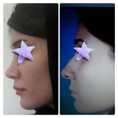 نمونه کار جراحی بینی دکتر کوشا2