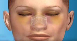 ورم بعد از عمل بینی