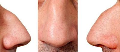 پوست بینی