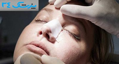بهترین جراح بینی در یزد