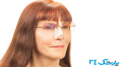 عینک بعد از عمل بینی