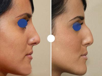 نمونه کار جراحی بینی دکتر حسن زاد آذر2