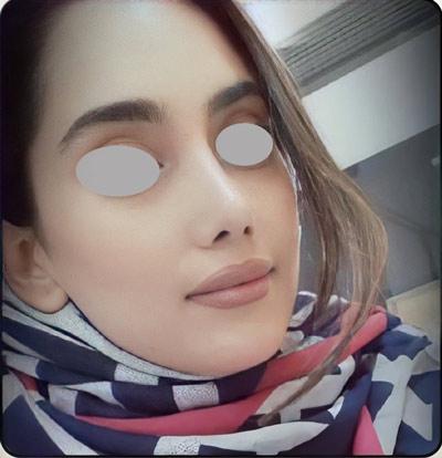 نمونه کار جراحی بینی دکتر یار احمدی16