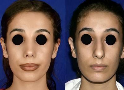 نمونه کار عمل بینی دکتر نوشین فتوحی 4