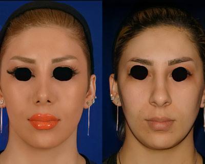 نمونه کار عمل بینی دکتر نوشین فتوحی 5