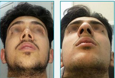 نمونه کار جراحی بینی دکتر زرین قلم11