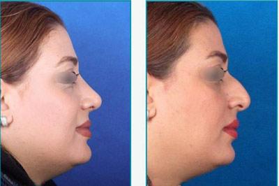 نمونه کار جراحی بینی دکتر زرین قلم1