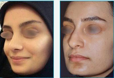 نمونه کار جراحی بینی دکتر زرین قلم2