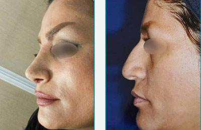 نمونه کار جراحی بینی دکتر زرین قلم3