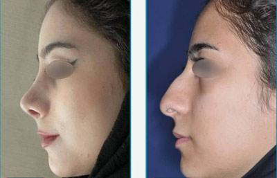 نمونه کار جراحی بینی دکتر زرین قلم5