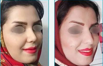 نمونه کار جراحی بینی دکتر زرین قلم7