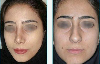 نمونه کار جراحی بینی دکتر زرین قلم8