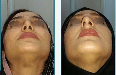 نمونه کار جراحی بینی دکتر زرین قلم10