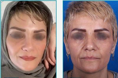 نمونه کار جراحی بینی دکتر زرین قلم15
