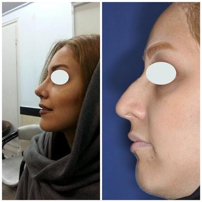 نمونه کار جراحی بینی دکتر زرین قلم16