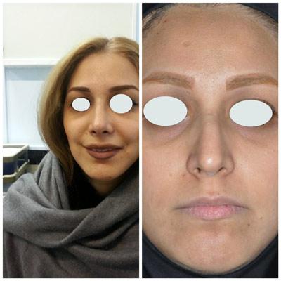 نمونه کار جراحی بینی دکتر زرین قلم17