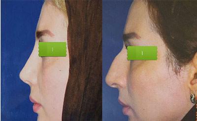 نمونه کار جراحی بینی دکتر کلانتر2