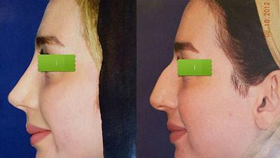 نمونه کار جراحی بینی دکتر کلانتر1
