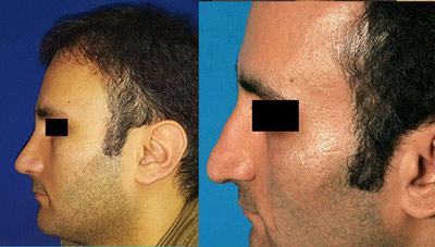 نمونه کار جراحی بینی دکتر کلانتر4