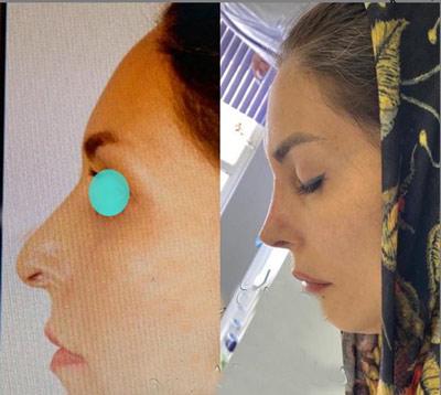 نمونه جراحی بینی دکتر حیدری زاده1