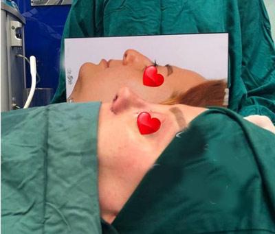نمونه جراحی بینی دکتر حیدری زاده2