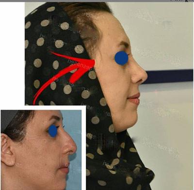 نمونه جراحی بینی دکتر ناصری1
