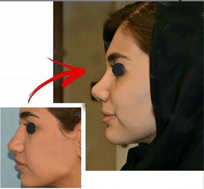 نمونه جراحی بینی دکتر ناصری3