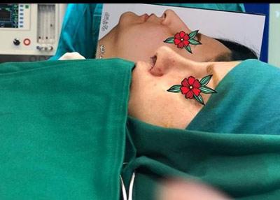 نمونه جراحی بینی دکتر زمانی4
